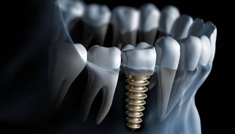 Dentys fogászati implantáció