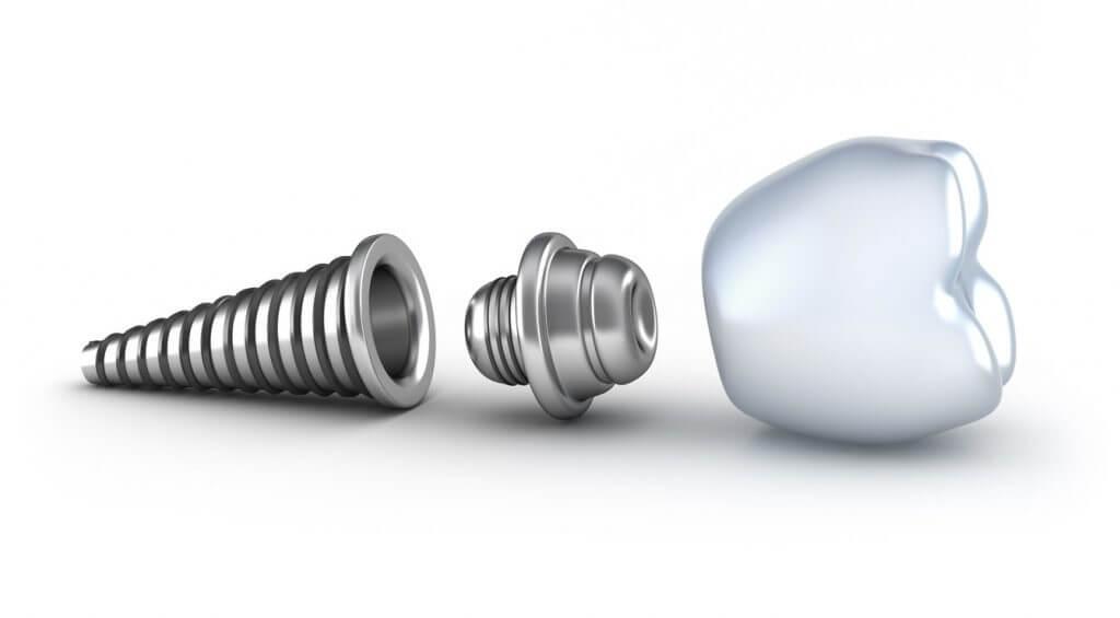 Fogászati implantációs kezelés